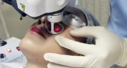 Why Fractional CO2 Laser has been Deemed the Best