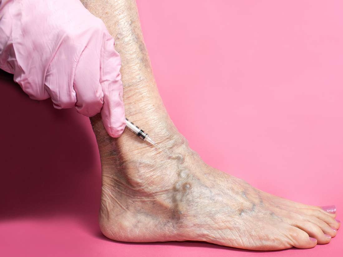 Five Tips for Taking Care After Varicose Vein Treatment