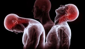 Whiplash Injury: From Symptoms to Claim!